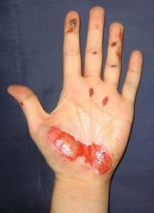 injury 2